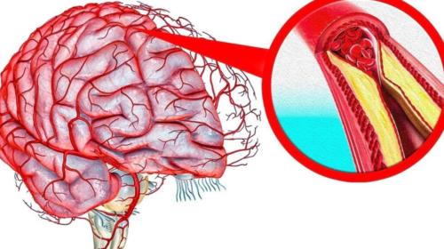 Как очистить сосуды головного мозга в домашних условиях быстро и эффективно