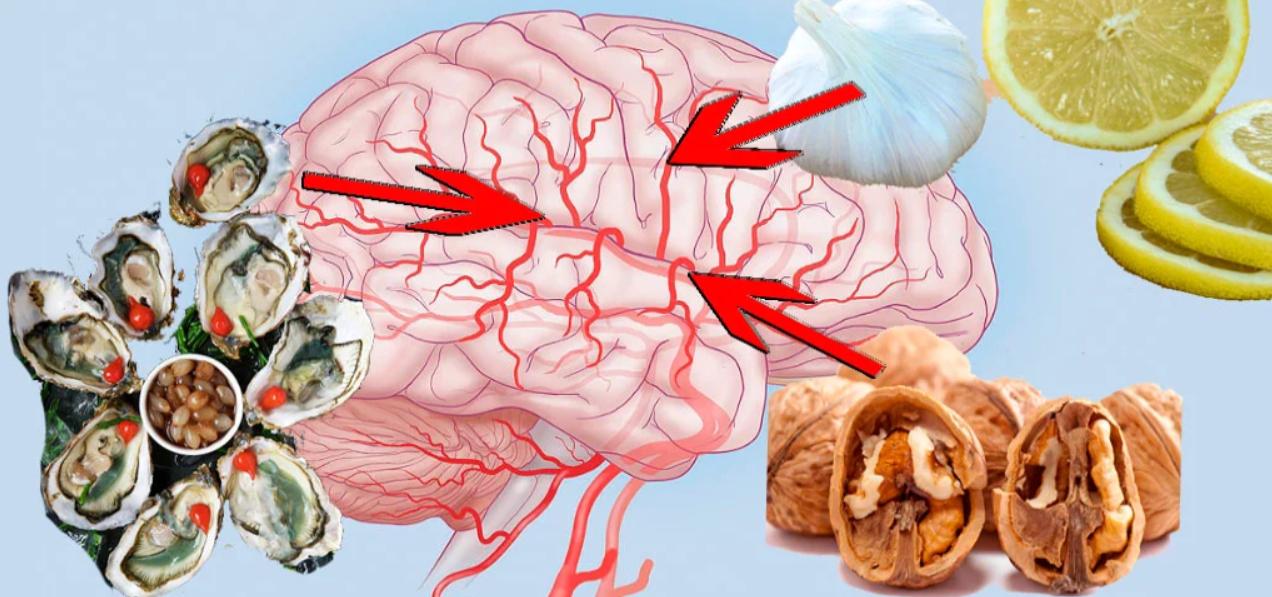 Как очистить сосуды головного мозга в домашних условиях