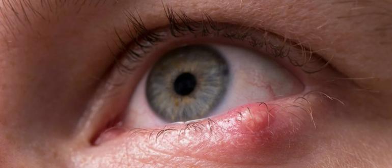 Ячмень на глазу чем лечить у взрослых